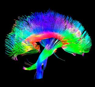limbic_brain.rid