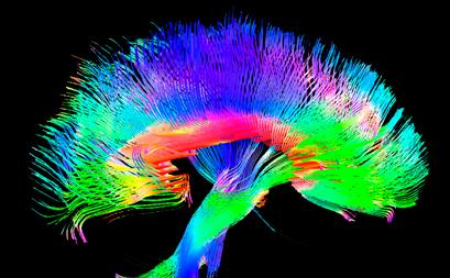 Cervello_MRI