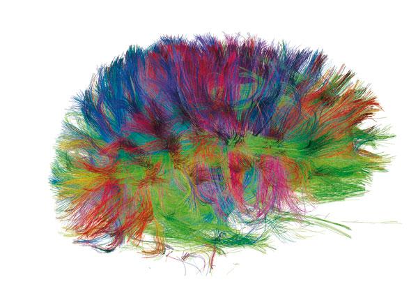 I fili della materia bianca del cervello in MRI