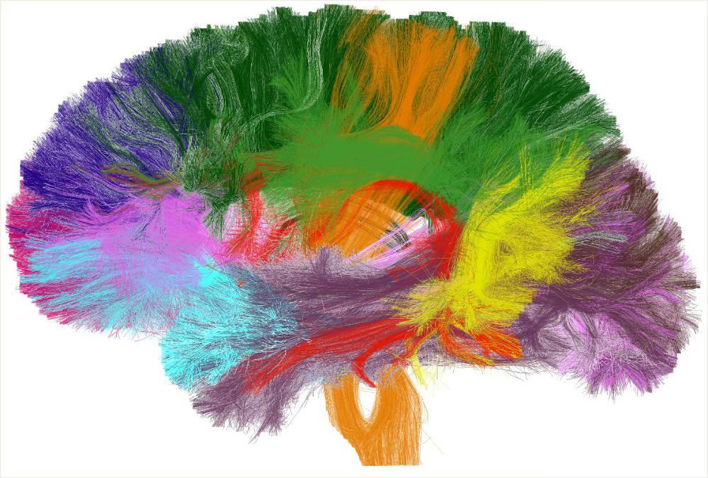 cervello_materia_bianca