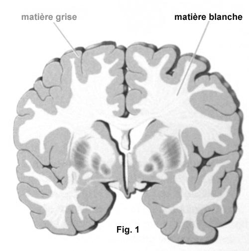 matière_grise_blanche